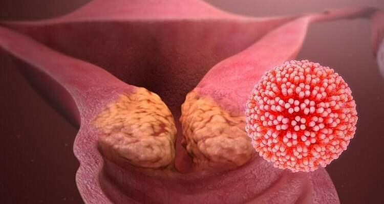 tumore papilloma virus sintomi)